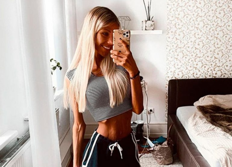 Muere la influencer que luchaba contra la anorexia