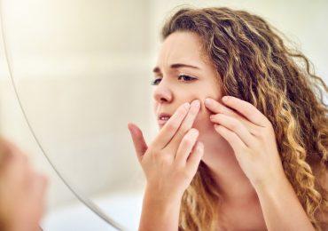 qué es el acné y qué lo causa