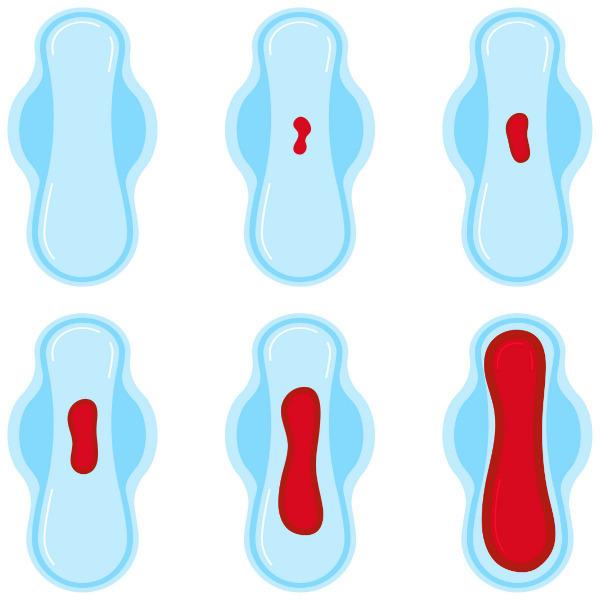 Menstruación abundante